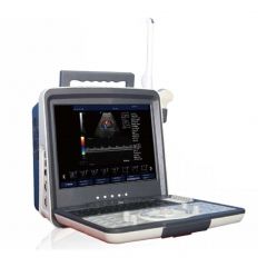 MY-A027C 15 inch LCD monitor portable ultrasound diagnostic system doppler ultrasound machine